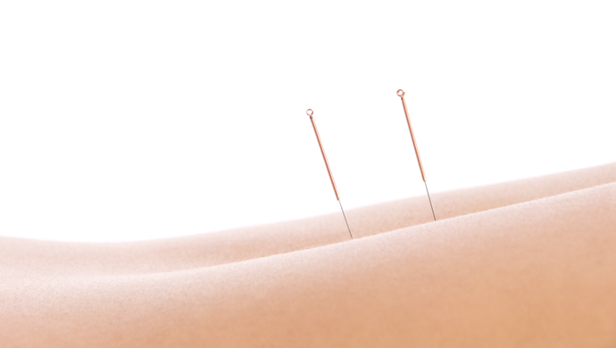 Detox with Acupuncture